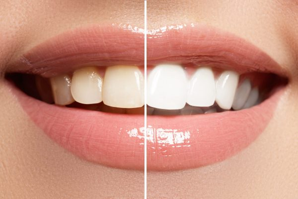 Perfect,Smile,Before,And,After,Bleaching.,Dental,Care,And,Whitening