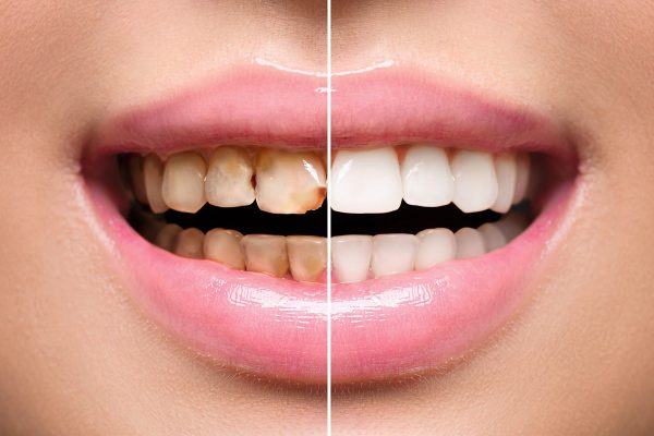 Woman,Teeth,Before,And,After,Dental,Treatment.,Teeth,Whitening.,Happy